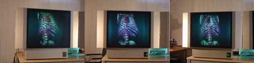 Human ribcage displayed in 3D on HoloVizio 3D display